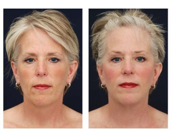 Neck Lift, Fat Grafting