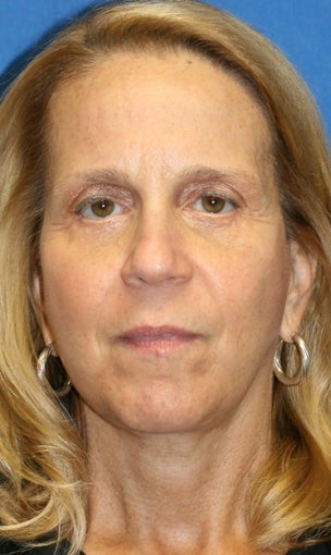 Facelift, Necklift, Full Face Fat Transfer, and Lower Eyelid Skin Pinch