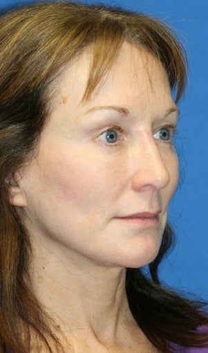 Facelift and Fat Transfer