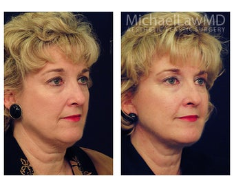 Facial Rejuvenation - Fat Transfer