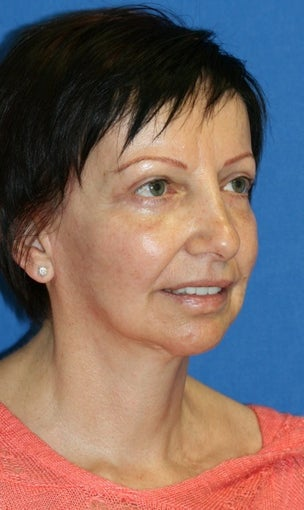 Facelift, Fat Transfer, Upper Bleph, Lower Eyelid Skin Pinch