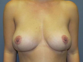 Breast Reduction, Fat Transfer