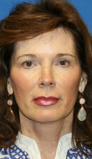 Facelift, Fat Transfer, and Skin Pinch