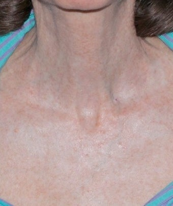 Fractional CO2 Laser Treatment