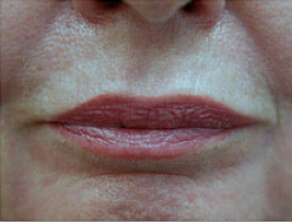 CO2 Fractional Laser Around Lips