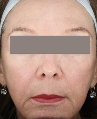 Fractional Resurfacing