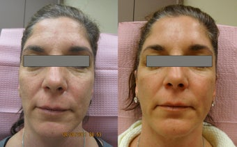 Fractional Erbium Laser Skin Resurfacing