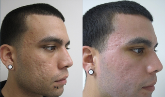 Fractional CO2 Resurfacing for Acne