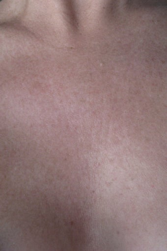 Chest wrinkles treated with Fraxel Restore