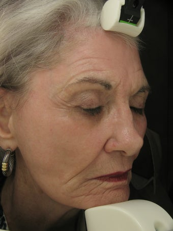 Fraxel Dual Laser 1550 and 1927 Facial Pigmentation and Wrinkles