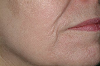 Acne scars treated with Fraxel