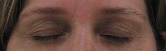Fraxel for eyelid lift