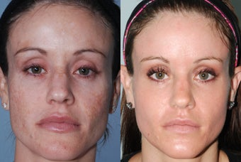 Fraxel Restore Dual Laser Treatments