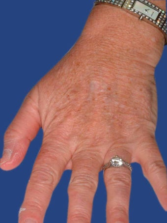 Hand Rejuvenation With Fraxel Dual Laser