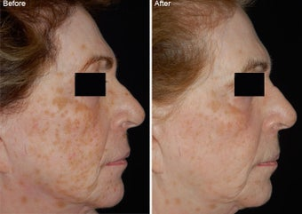 Fraxel Laser Resurfacing