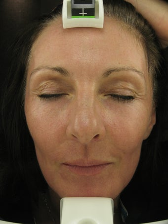 Fraxel re:pair CO2 laser resurfacing treatment