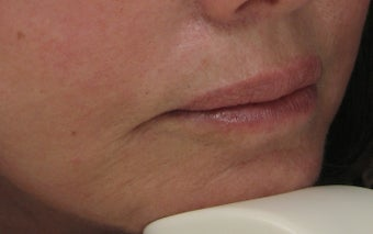Fraxel Re:pair (repair) CO2 Laser Resurfacing Treatment around the mouth