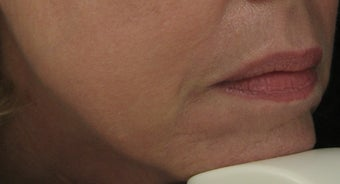 Fraxel re:pair (repair) CO2 laser for Mouth, Jowls, and Lips