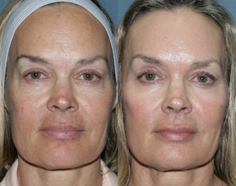 Fraxel Repair for sun damage and wrinkles