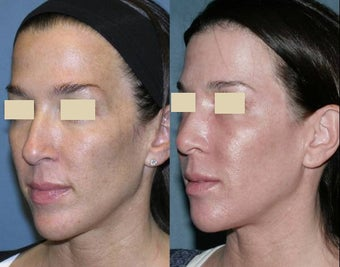 Fraxel repair for sun damage, melasma on face and neck