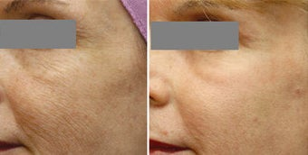 Fraxel Repair Resurfacing for sun damage and wrinkling