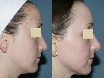 Fraxel Repair for melasma, acne and scars