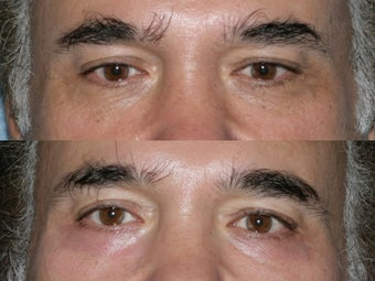 Fraxel Repair for under eye wrinkles