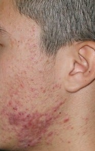 Fraxel Repair for  Acne