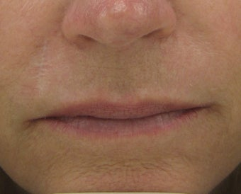 Fraxel re:pair (repair) CO2 laser resurfacing for scar improvement