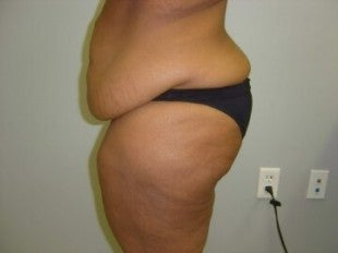 40 year old lady with excess skin after gastric bypass - side view
