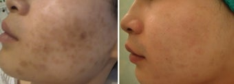 Green peel to hyper-pigmentation of cheek