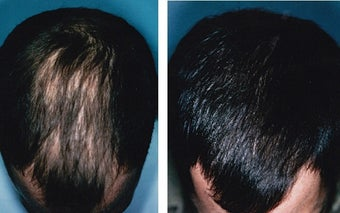 Medical treatment for hair loss (no surgery)