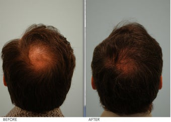 Crown (vertex) Hair Restoration