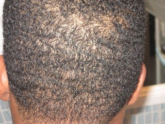 Hair Transplant - FUE 350 grafts