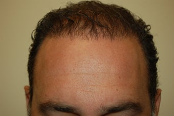 hair transplantation using Neograft