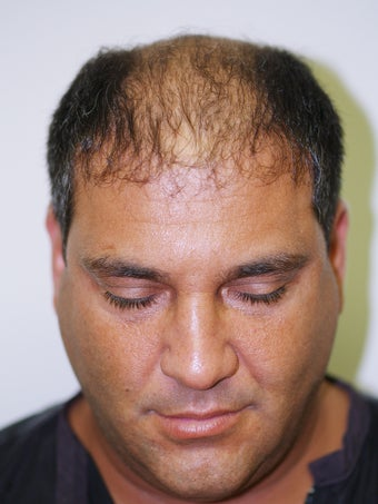 Hair Transplant-  2800 grafts