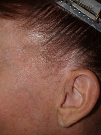 Reconstruction of sideburns with hair transplants lost as a result of prior facelift