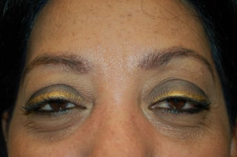 neograft brow transplant procedure