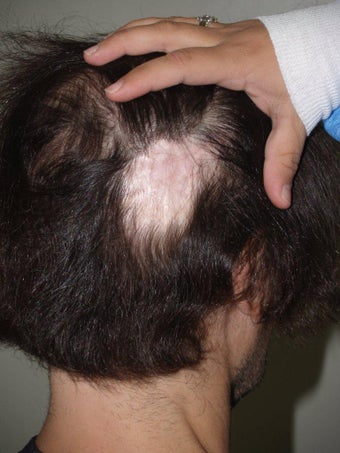 Hair Transplant to Prior Scar