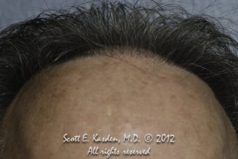 AccuGraft Hair Transplant