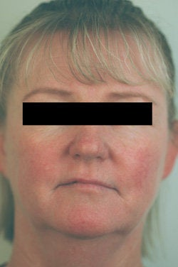 Rosacea and Facial Spider Veins