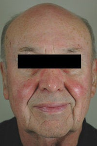 Pulsed Dye Laser Treatment for Rosacea