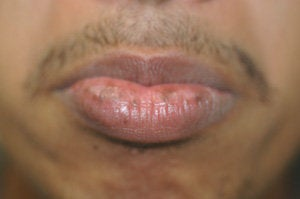 Brown Spots on the Lips