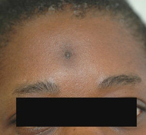 Scar Removal for Black Skin