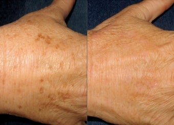 IPL Photofacial Hand Rejuvenation