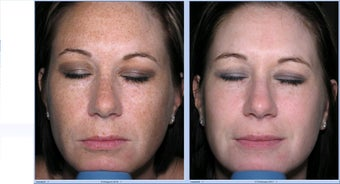 Limelight Ipl Treatment of the face