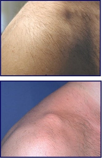 IPL for Age Spot and Hair Removal Before and After