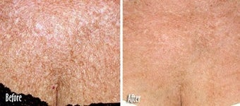 IPL for Age Spots and Uneven Skin Tone on Chest