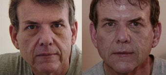 Dermal filler facial transformation