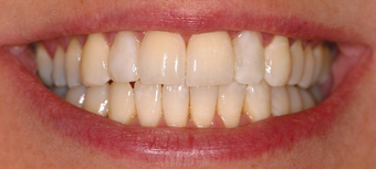 Invisalign, whitening, bonding